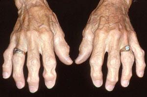 HANDS in osteoarthritis