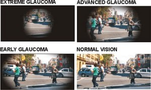 GLAUCOMA PROGRESS