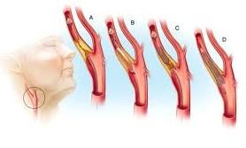 καρωτιδα στενωση 1