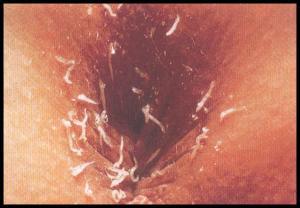 pinworm 2