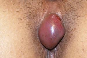hematoma. 1