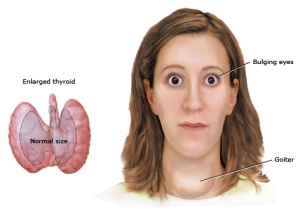 hyper thyroid_