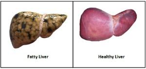 1,2 liver