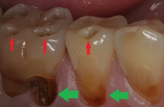 severe-acid-reflux-damaged-teeth