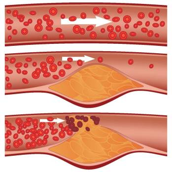 atherosclerosis obstruction