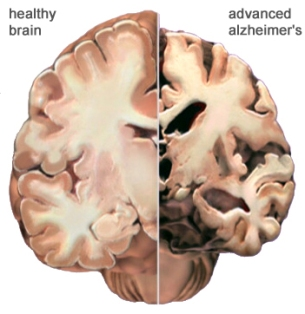 healthy vs alz brain