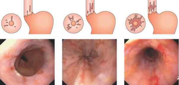 grade-esophagitis