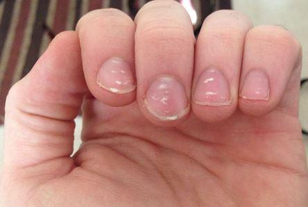 arsenic nails